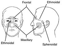 Sinusitis - Audiology - Annapolis - Columbia - Glen Burnie - Kent Island - Laurel - Odenton, MD